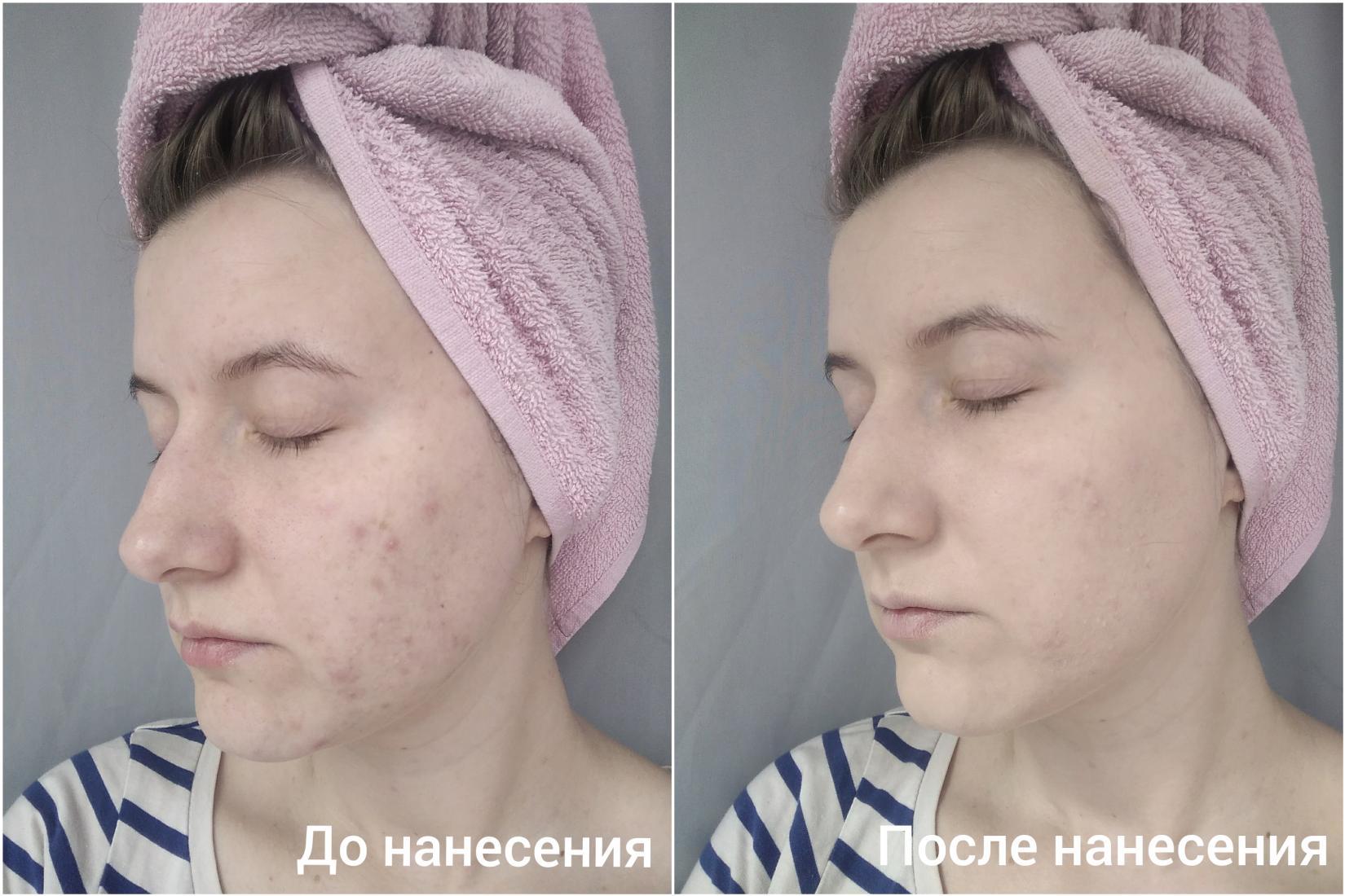 Жидкая тональная основа Eveline Liquid Control HD, 015 Light Vanilla - эффект на лице До и После