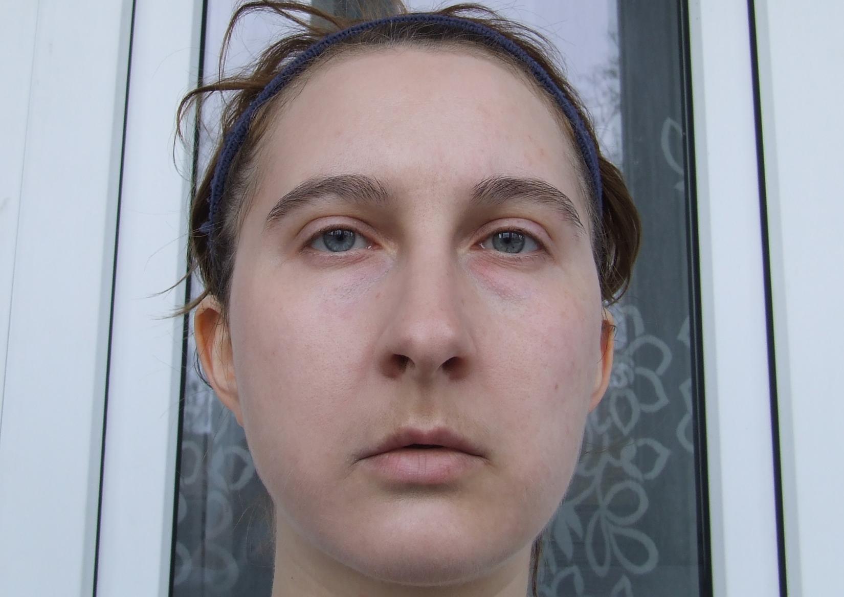 Вид на коже BB-крема Derma E