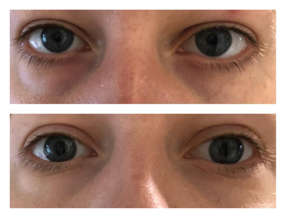 Консилер BeYu Light Reflecting Concealer, результат (замазанные круги под глазами)