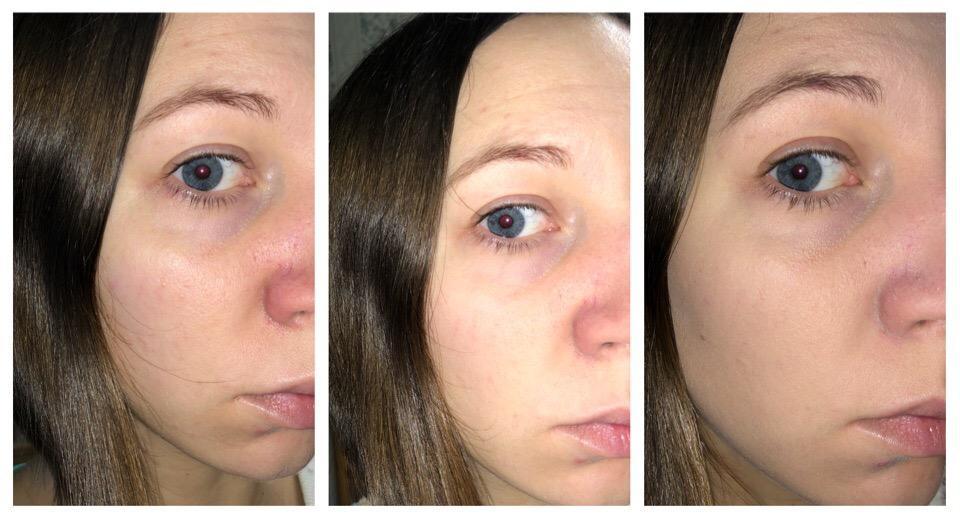 Рассыпчатая пудра Pupa Like a Doll Loose Powder, 002 Rosy Nude - эффект на лице, До и После