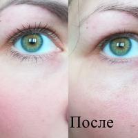 Деликатный лосьон для снятия макияжа с век Черный жемчуг - результат До и После