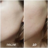 BB-крем Garnier Miracle Skin Секрет совершенства Extra-light (Очень светлый) - эффект до и после