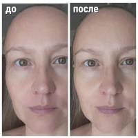 Маска-SOS для лица Organic Kitchen После вечеринки - эффект До и После